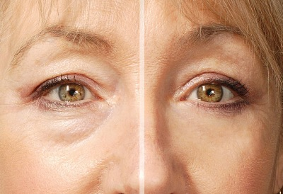 retin a for wrinkles | Healthy Anti-Aging System