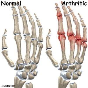 Wobenzym For Arthritis Pain